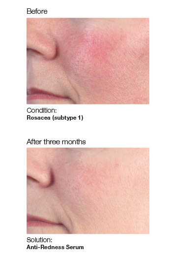 anti redness serum