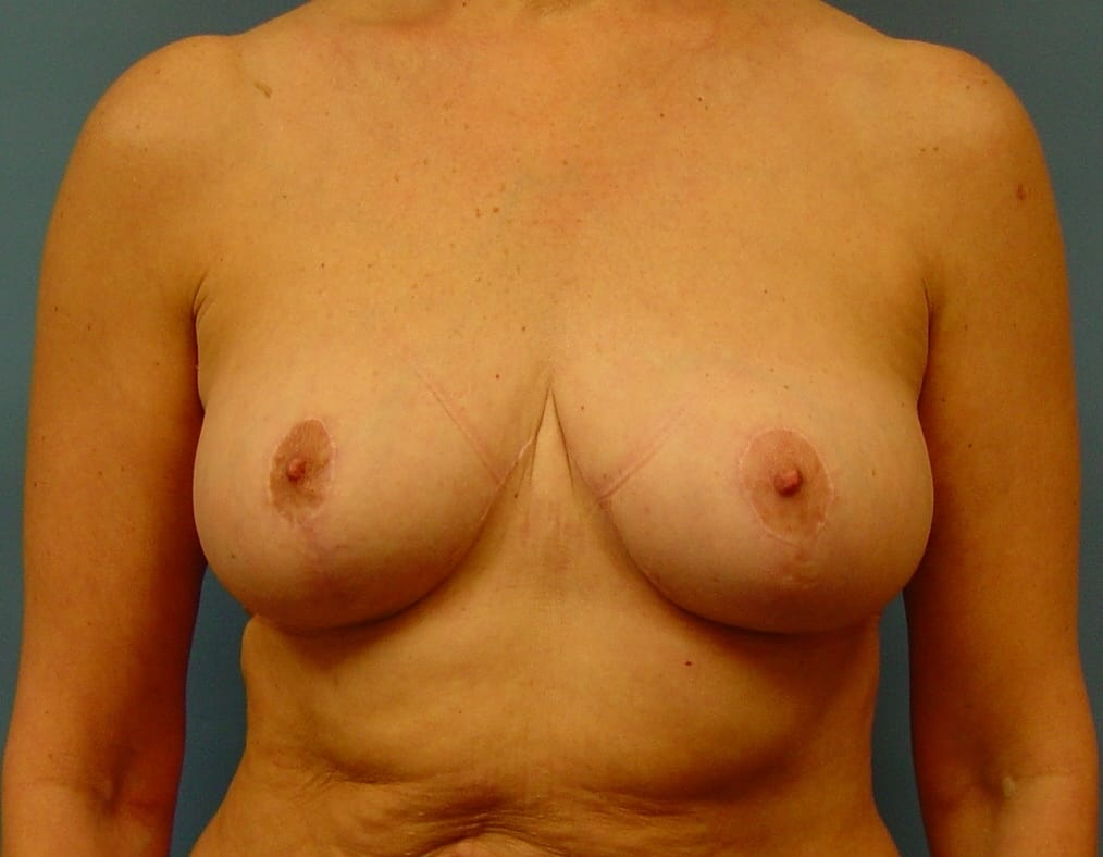 breast lift wauwatosa