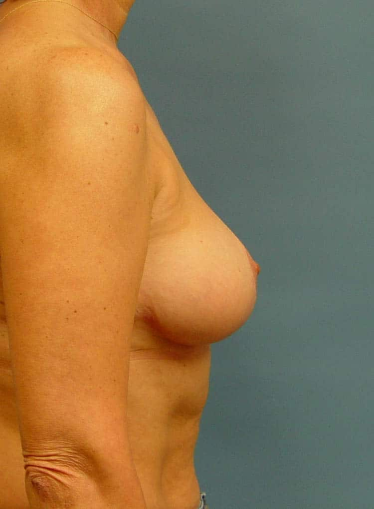 breast lift brookfield