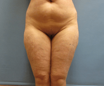 liposuction sono bello