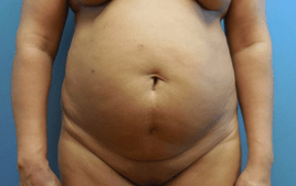 Tummy Tuck Procedures | Dr  Lorelle Kramer, M D