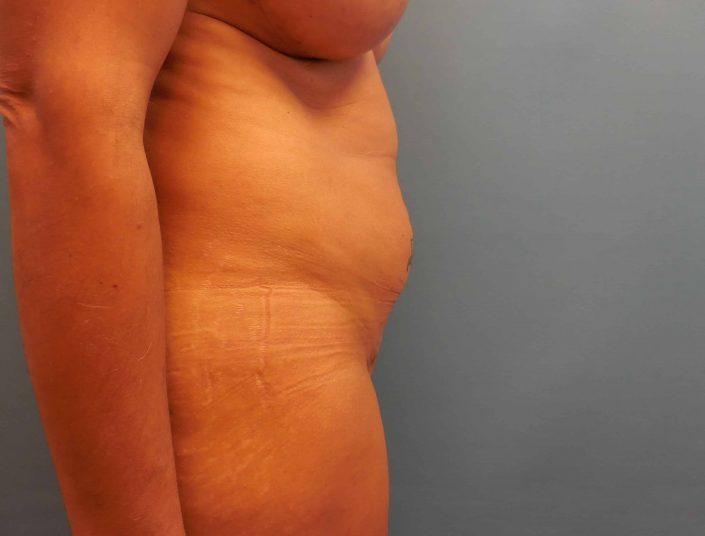 lipo tummy tuck sono bello