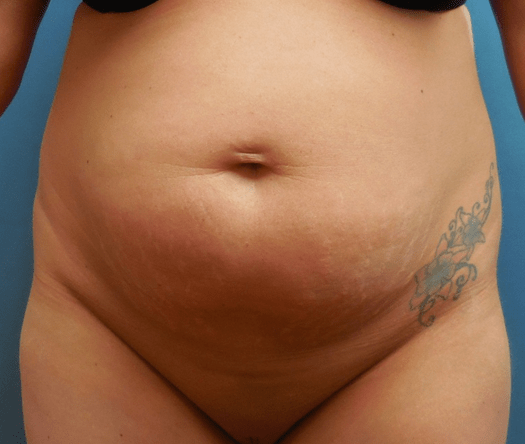 tummy tuck before pic