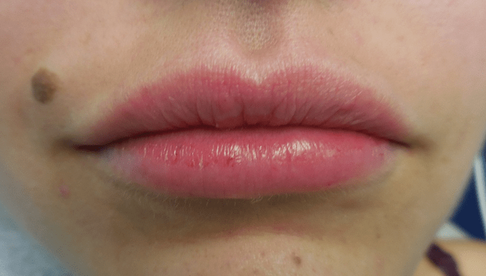 Lip filler after pic
