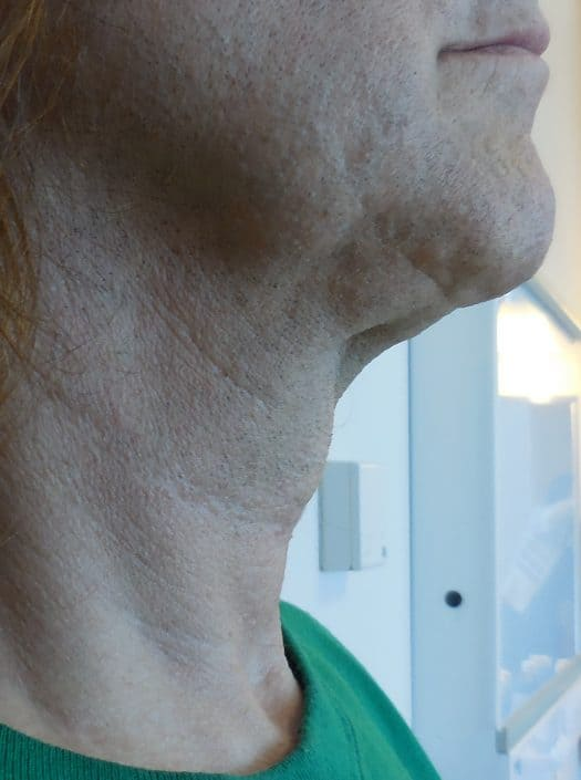 neck fat removal