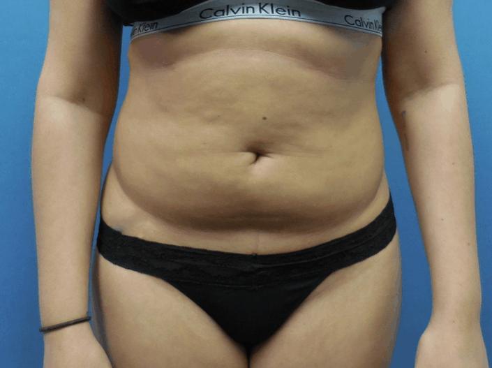 tummy lipo