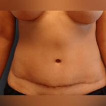 lipo abdomen