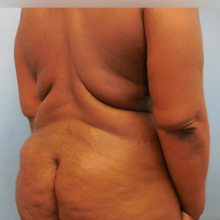 back fat removal surgery
