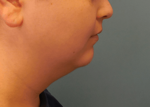 remove chin fat