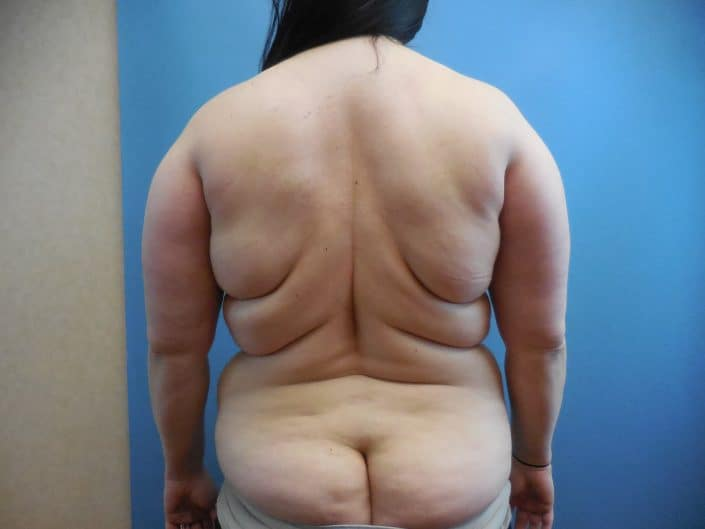liposuction back fat