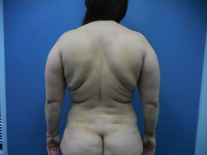 back fat lipo