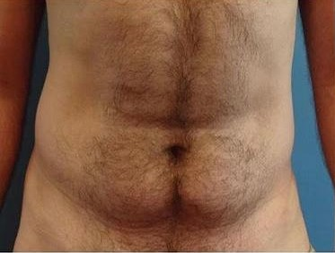 men lipo before after pics