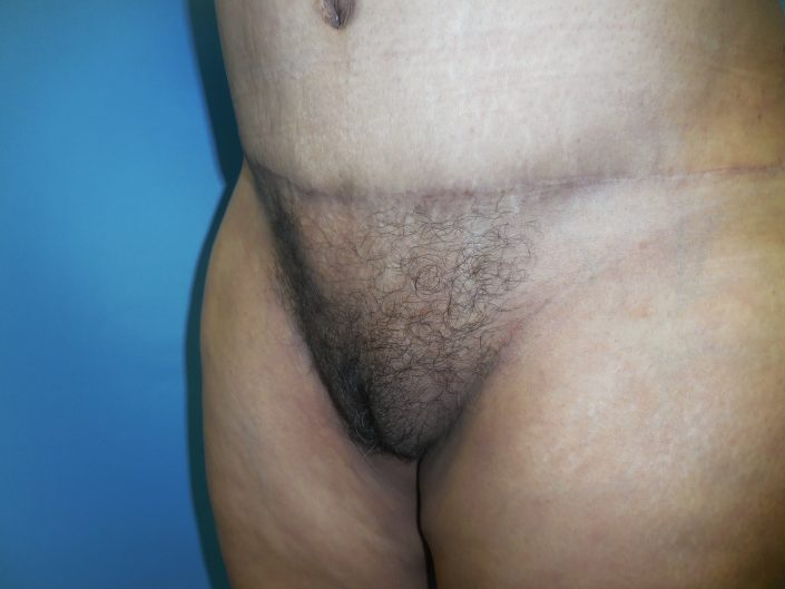pubic area liposuction by dr kramer