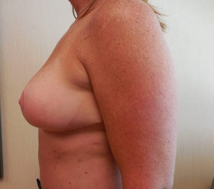 after breast implant sugery