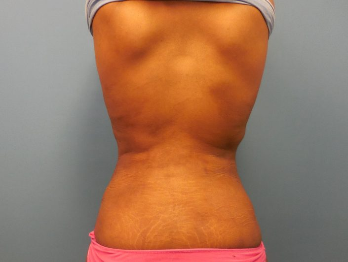 after back fat removal