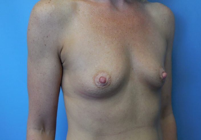 need boob job