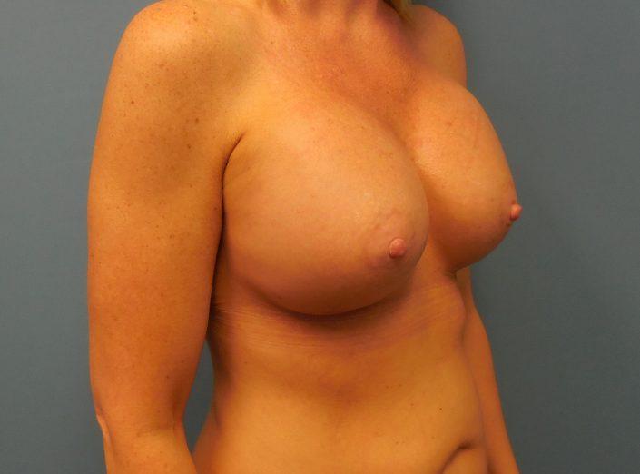 boob job pic