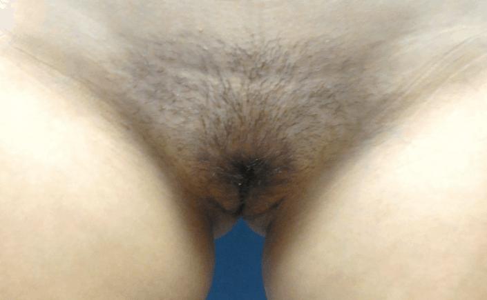 labia plastic surgery