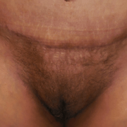 pubic liposuction after pic