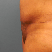 after liposuction picture: female