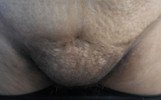 female pubic liposuction: before