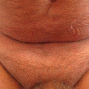 male pubic liposuction