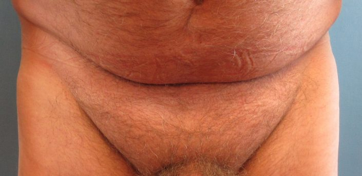 male pubic liposuction