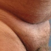 before pubic fat removal pic: male