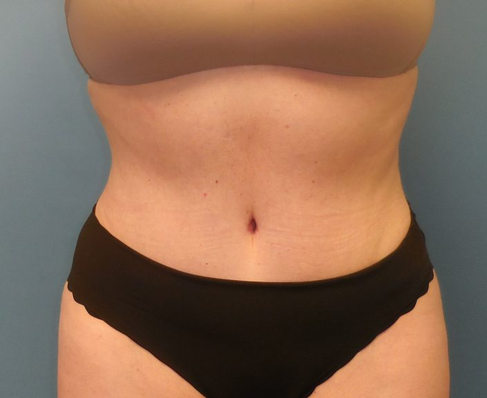 after tummy tuck pic