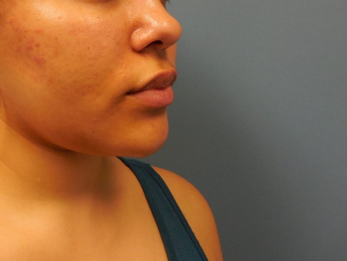 chin implant before pic