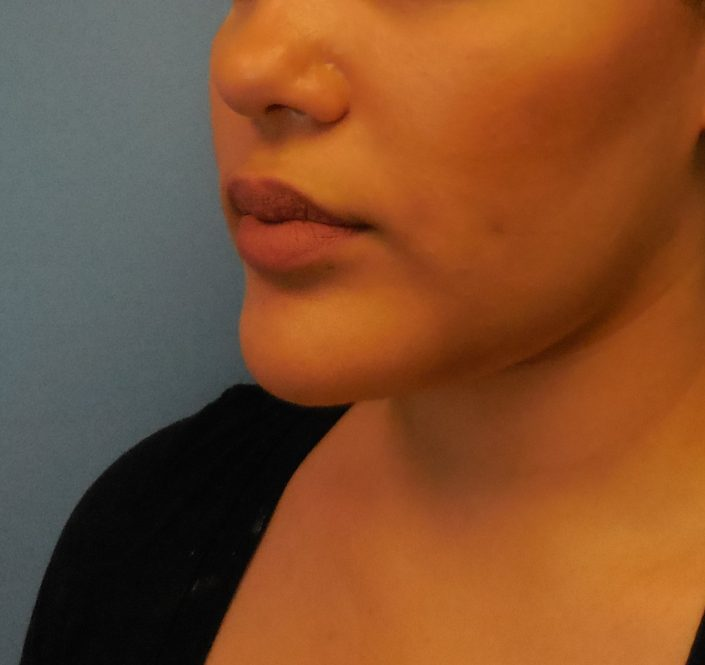 chin implant by dr lorelle kramer