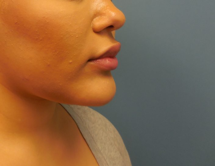 chin implant pic