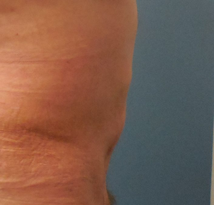 male tummy tuck after