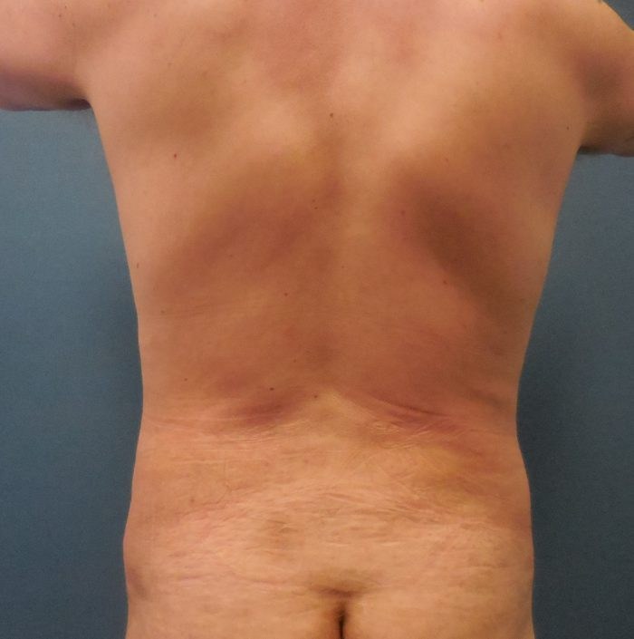 male back fat removal