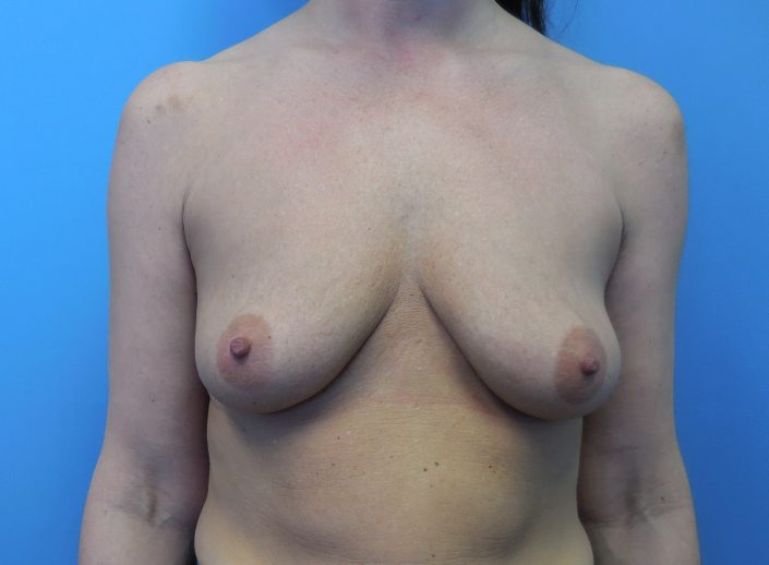 breast lift before pic