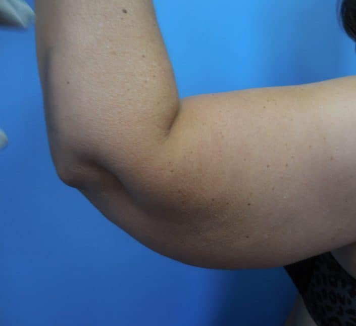 arm fat removal