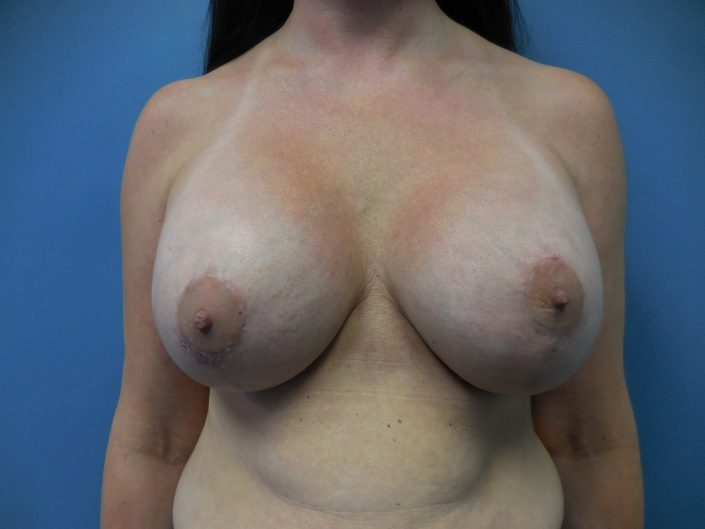 breast implants after pic