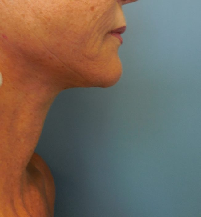 chin fat removal